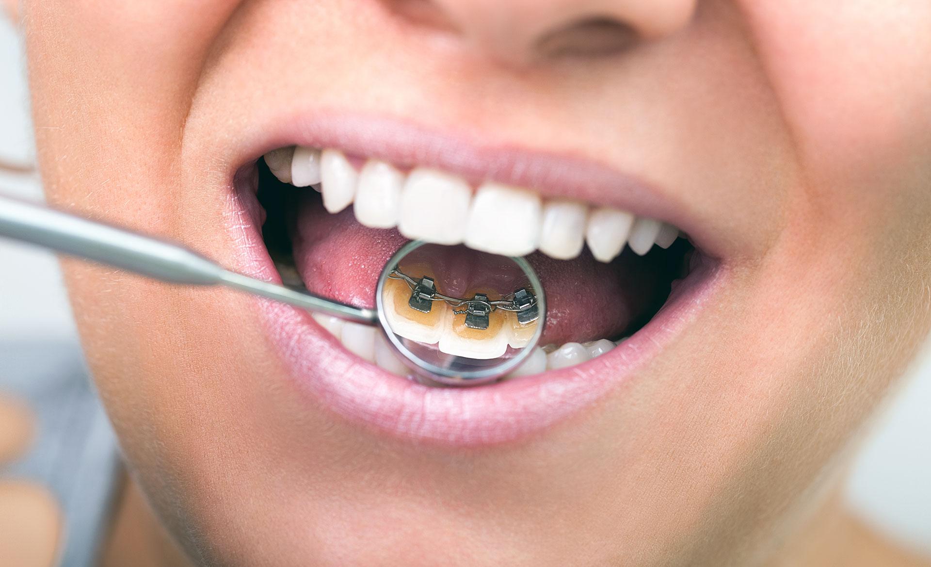 Brackets colocados en la cara interna de los dientes